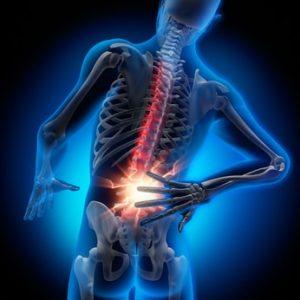 Rückenschmerz 2